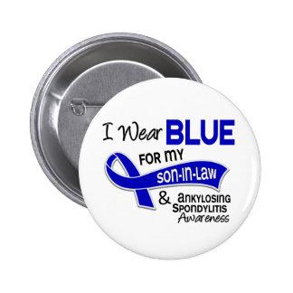 Llevo al yerno azul 42 Spondylitis Ankylosing Pin