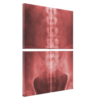 Lona envuelta arte de la radiografía de Digitaces Lienzo Envuelto Para Galerias