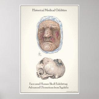 Los efectos de Syphilius. no tratado Posters