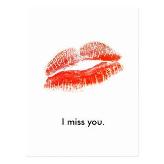 los red_lips, le falto tarjetas postales