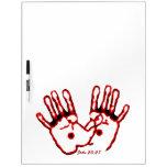 Loving Hands - John 20:27 Dry Erase Whiteboards