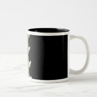 Lumbar and Thoracic Vertebrae Two-Tone Coffee Mug