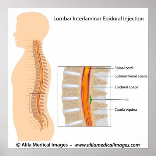 lumbar interlaminar epidural steroid injection technique