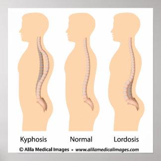 Lumbar lordosis and kyphosis, medical drawing. poster