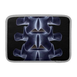Lumbar Vertebra 2 Sleeves For MacBook Air