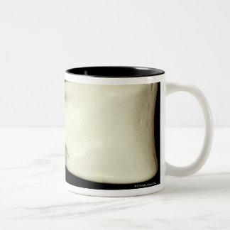 Lumbar Vertebra Two-Tone Coffee Mug