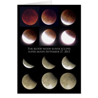 Lunar Eclipse-Sunday, September 27, 2015 Greeting Card