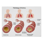 Lung disease Asthma Poster
