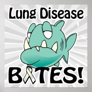 Lung Disease BITES Poster