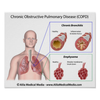 Lung disease COPD labeled Poster