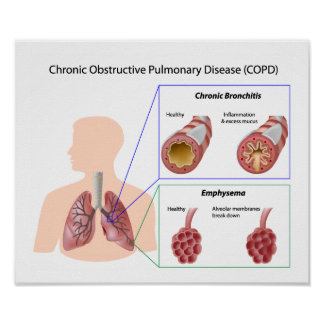 Lung disease (COPD) Poster