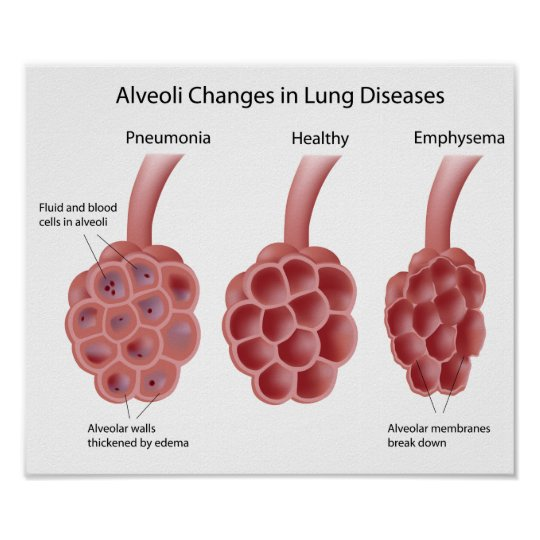 lung diseases Poster