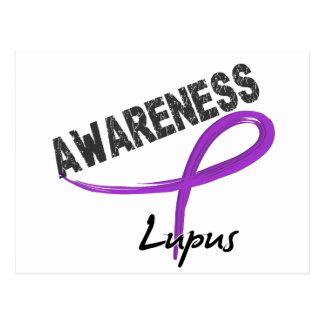 Lupus Awareness 3 Postcard