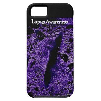 Lupus Awareness Case