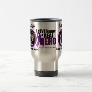 Lupus, Best Friend Advocate-Educate-Support Travel Mug