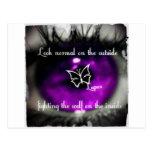 lupus eye22.jpg postales