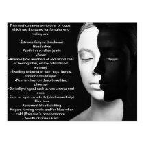 Lupus the silent partner... postcard