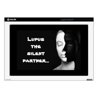 Lupus the silent partner... decals for laptops