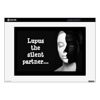 "Lupus the silent partner... 15"" laptop decal"