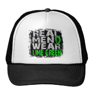 Lyme Disease Real Men Wear Lime Green Trucker Hat