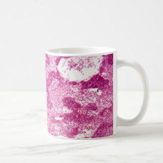 Lymph node cells under the microscope. classic white coffee mug