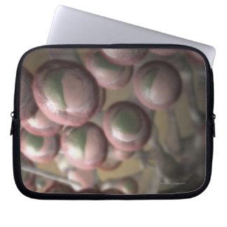 Lymphatic Tissue Laptop Sleeve