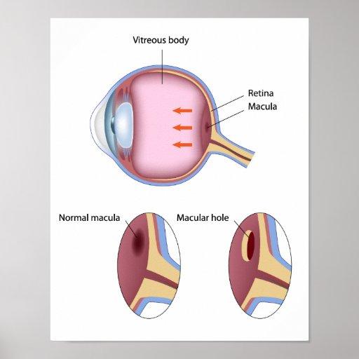 Macular hole retinal disorder Poster