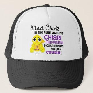 Mad Chick 2 Cousin Chiari Malformation Trucker Hat