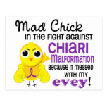 Mad Chick 2 Evey Chiari Malformation Post Cards