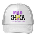 Mad Chick In The Fight Hodgkin's Lymphoma Hat