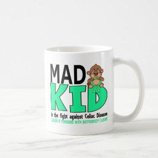 Mad Kid Celiac Disease Coffee Mugs