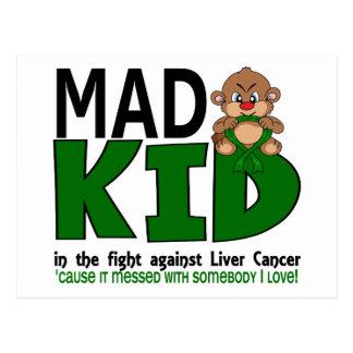 Mad Kid Liver Cancer Postcard