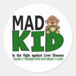 Mad Kid Liver Disease Round Sticker
