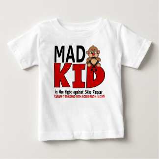 Mad Kid Skin Cancer Baby T-Shirt