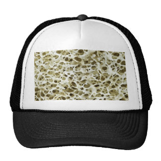 Magnified Porous Texture from the Human Hip Bone Trucker Hat