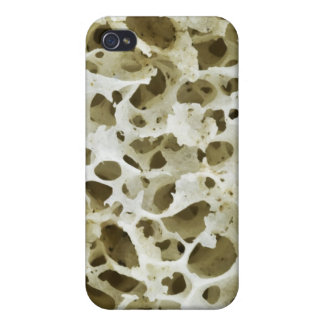 Magnified Porous Texture from the Human Hip Bone iPhone 4/4S Case
