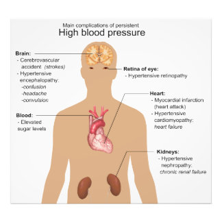 Main Complications of High Blood Pressure Chart Photo Print