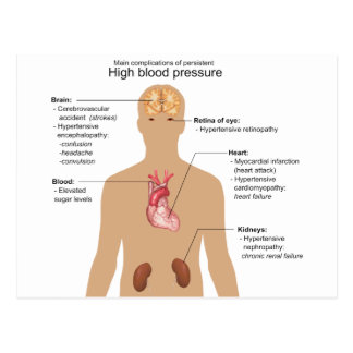 Main Complications of High Blood Pressure Chart Post Card