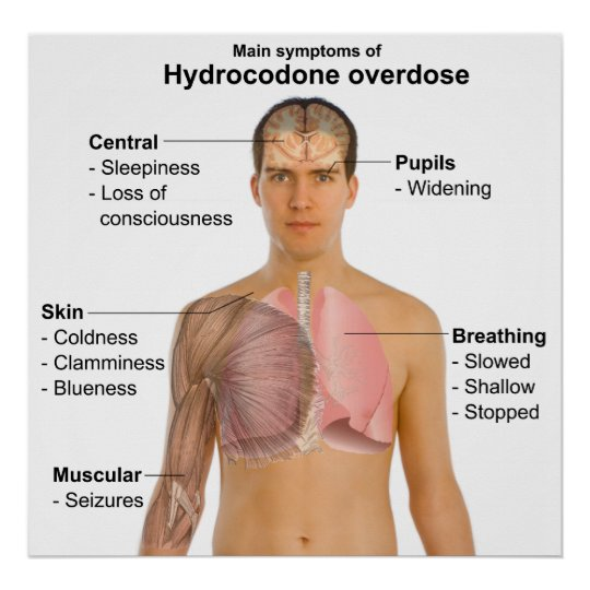 Main Symptoms of a Hydrocodone Overdose Chart
