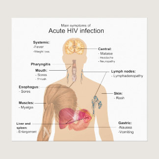 Main Symptoms of Acute HIV Infection Canvas Print