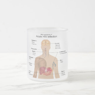 Main Symptoms of Acute HIV Infection Frosted Glass Coffee Mug