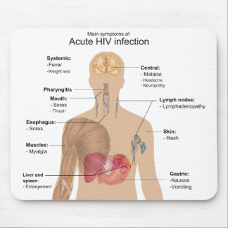 Main Symptoms of Acute HIV Infection Mouse Pad
