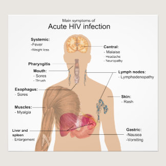 Main Symptoms of Acute HIV Infection Photo Print