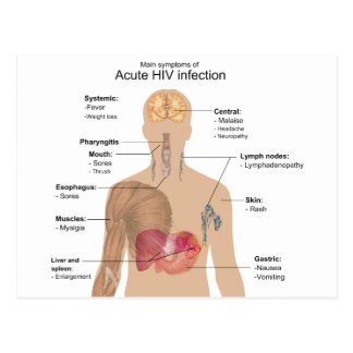 Main Symptoms of Acute HIV Infection Postcard