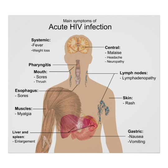 hiv symptoms pictures