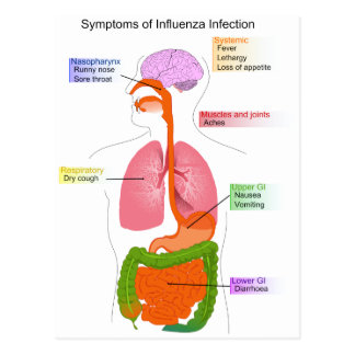 Main Symptoms of an Influenza Infection Diagram Post Card