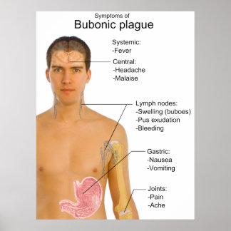 Main Symptoms of Black Death Bubonic Plague Chart Posters