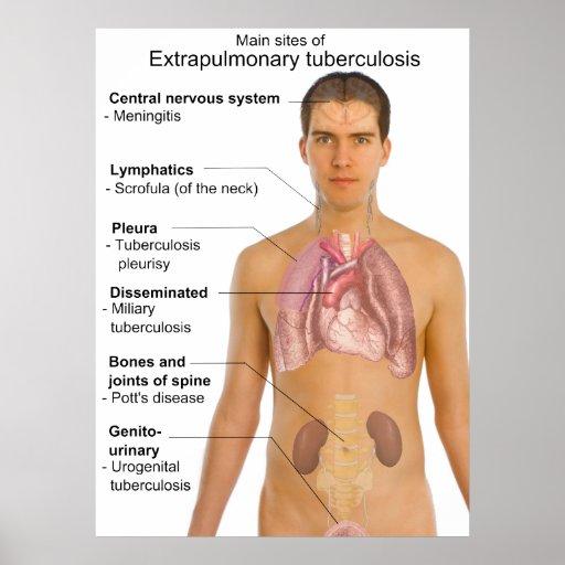 Main Symptoms of Extrapulmonary Tuberculosis Chart Poster