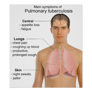 Main Symptoms of Pulmonary Tuberculosis Chart Poster