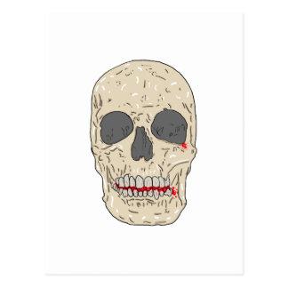 Mal, bloody y cráneo devastado postal